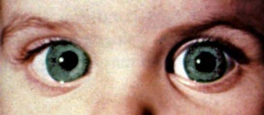 PRIMARY CONGENITAL GLAUCOMA • Examinations: • Corneal haze, lacrimation, photophobia and blepharospasm, • Buphthalmos if IOP