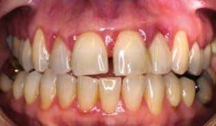 Fig. 4 Chronic periodontitis case before initial periodontal therapy