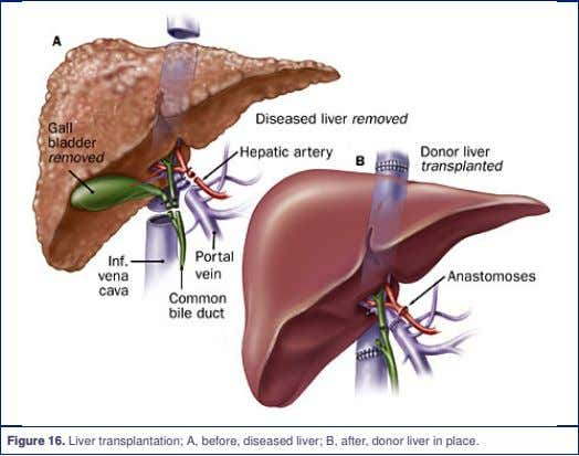Figure 16. Liver transplantation; A, before, diseased liver; B, after, donor liver in place.