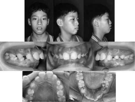 562 KO, PAIK, CHOI, BAEK Figure 1. Pretreatment facial and intraoral photographs (10 years, 10 months).