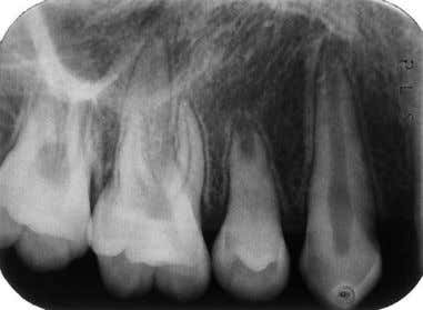 564 Figure 4. autotransplantation procedure. Periapical radiograph taken 9 months after the occlusal plane and stabilized