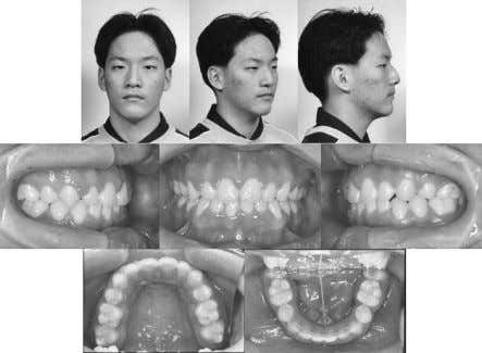 Angle Orthodontist, Vol 84, No 3, 2014 KO, PAIK, CHOI, BAEK Figure 5. Posttreatment facial and