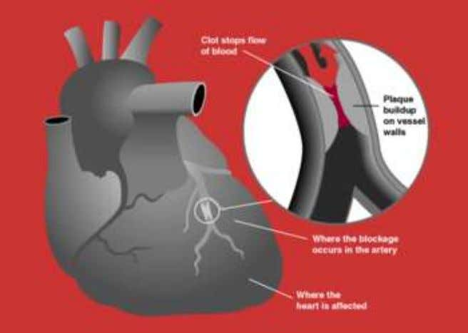 A myocardial infarction occurs when a n atherosclerotic plaque slowly builds up in the inner