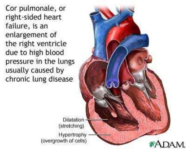 http://www.heartfailure.org/eng_site/hf_lungs.asp http://www.nlm.nih.gov/medlineplus/ency/article/000129.htm Fig. 11.2-