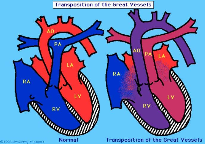 http://www.kumc.edu/instruction/medicine/pedcard/cardiology/pedcardio/dtgadiagram.gif cortesia de James Bingham Fig.