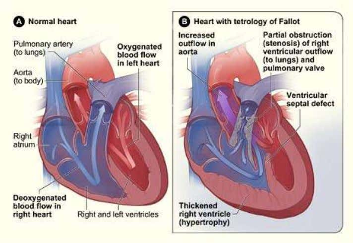 http://en.wikipedia.org/wiki/File:Tetralogy_of_Fallot.svg