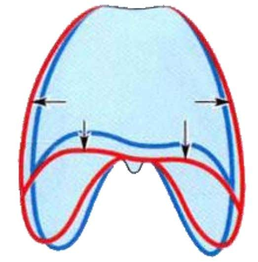 : the dome returns to the former position,  reduces the volume to the thoracic cavity,