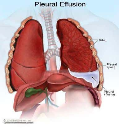 Costodiaphragmatic recess  pleural effusions collect in the costodiaphragmatic recess when in standing position