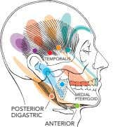 TEMPORALIS MEDIAL PTERYGOID POSTERIOR DIGASTRIC ANTERIOR