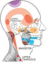 LATERAL PTERYGOID MASSETER UPPER TRAPEZIUS
