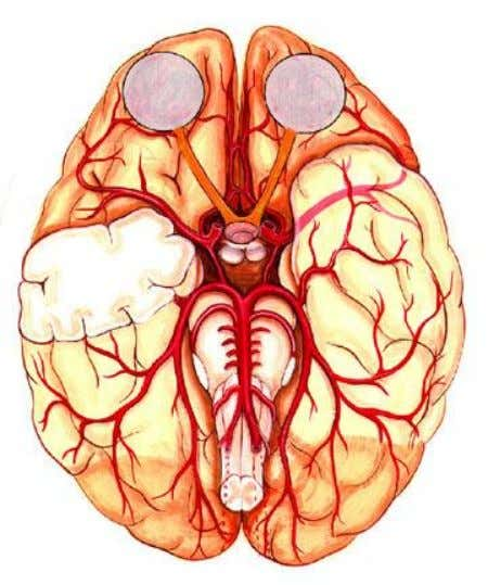 common representations of the cerebral arteries. I find they are both confusing. We'll look at them