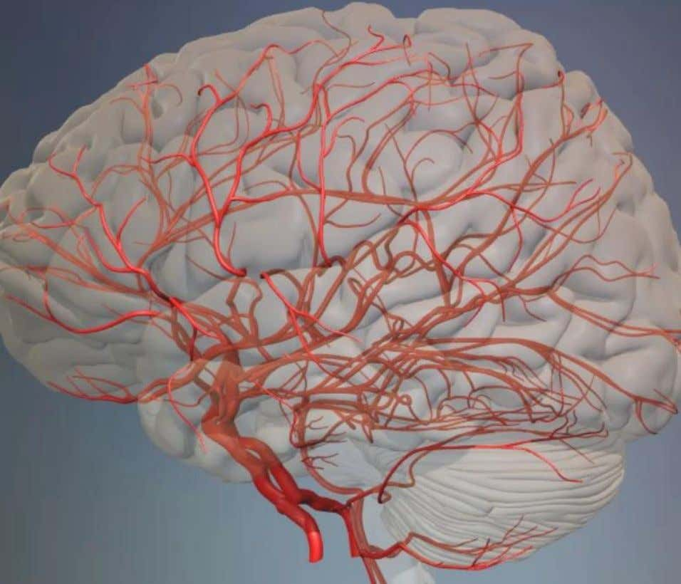 Anterior Cerebral Arteries