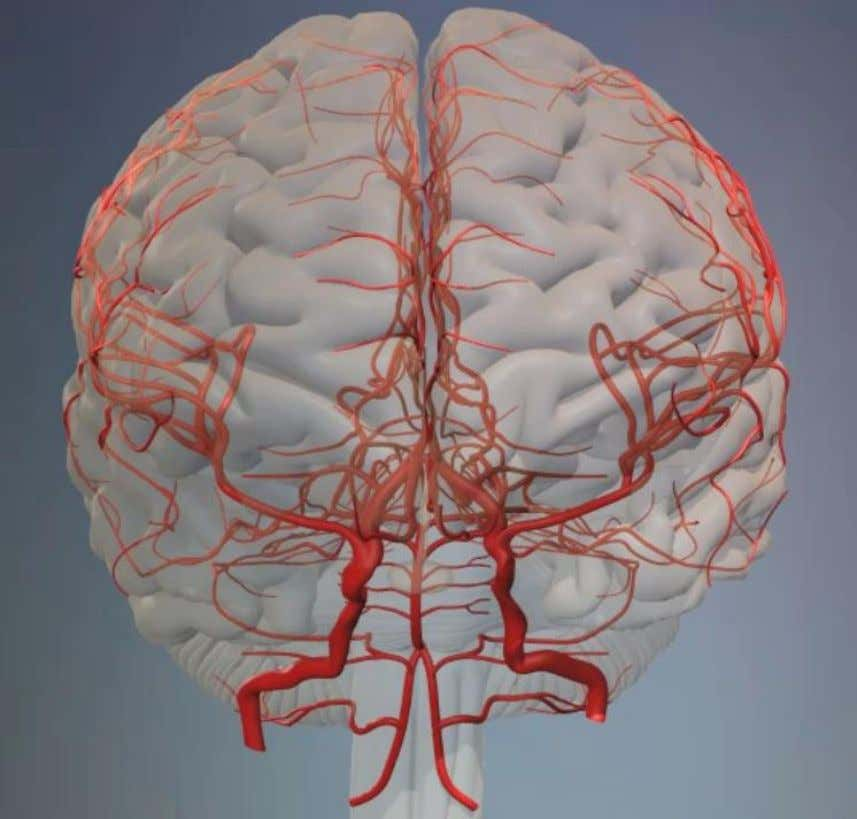 Middle Cerebral Arteries