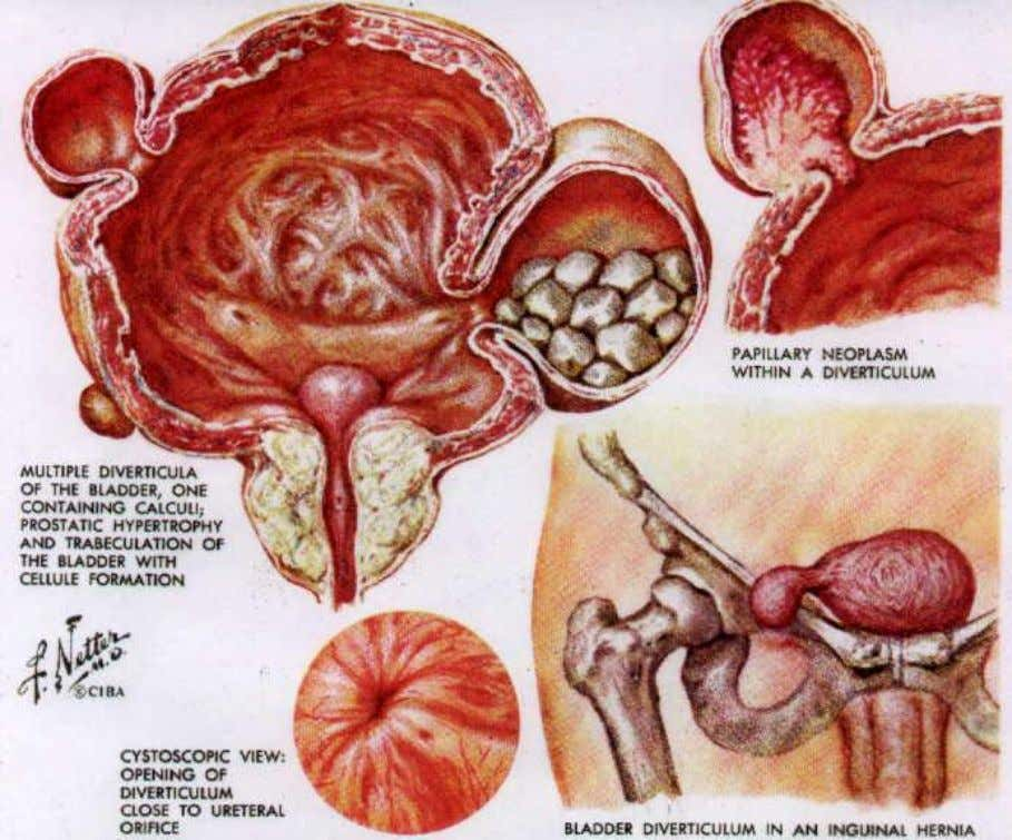 DIVERTICULA OF THE URINARY BLADDER