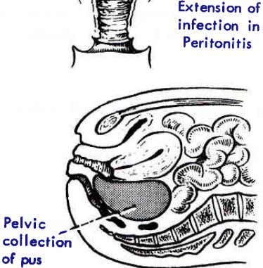 Exlension of infection in Peritonitis Pelvic collectiJn of pus