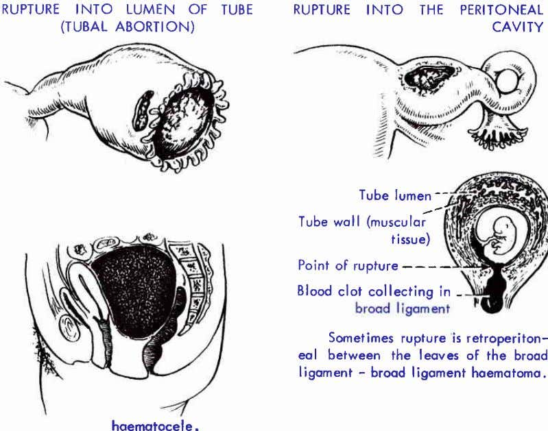 RUPTURE INTO LUMEN OF TUBE (TUBAL ABORTION) RUPTURE INTO THE PERITONEAL CAVITY Tube lumen --