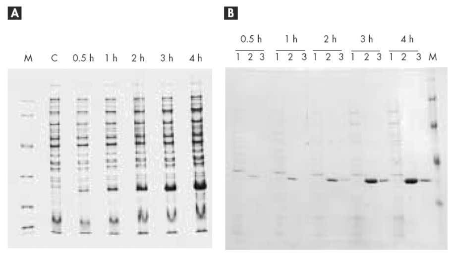 the optimal induction period ca n be established. Figure 7. Time course of target protein expression.