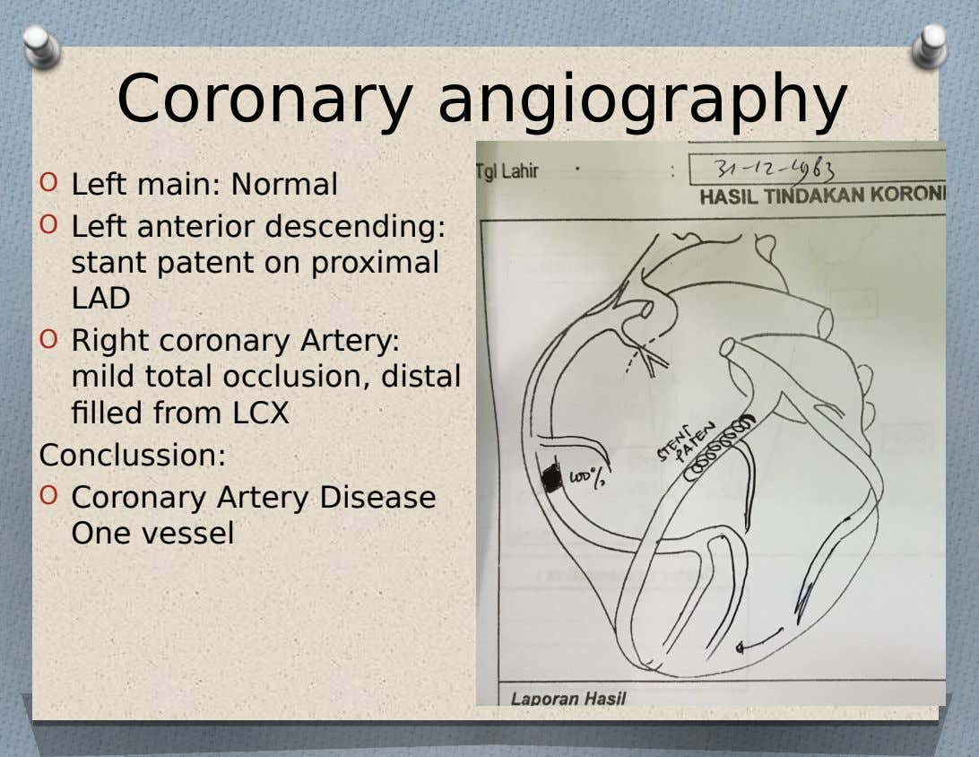 Coronary angiography O Left main: Normal O Left anterior descending: stant patent on proximal LAD O