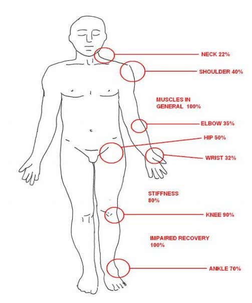 replacements. Permanent stiffness that exhibits a clear loss fig.3. -frequency of musculoskeletal disorders in severe
