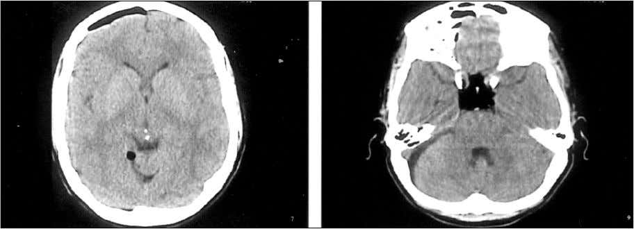 air entry in several previously reported cases. 1 , 2 Figure: Brain CT scan without contrast