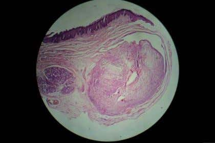 Fig Histopathological examination. Confirmed 5: the diagnosis by The underlining connective tissue stroma shows presence