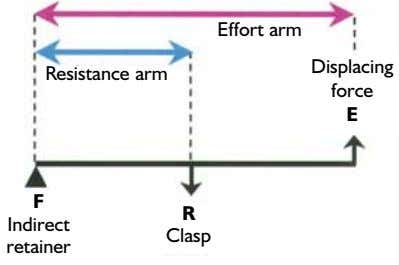 Effort arm Displacing Resistance arm force E F R Indirect Clasp retainer