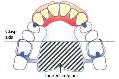 Clasp axis Indirect retainer