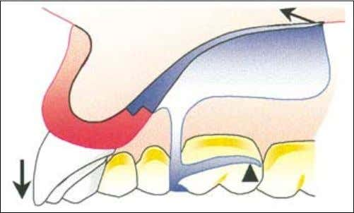 axis Indirect retainers Clasp axis Indirect retainer Fig. 7 — Mechanical disadvantage of the denture design