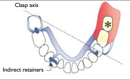 Clasp axis Indirect retainers