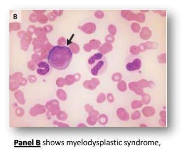 Panel B shows myelodysplastic syndrome,