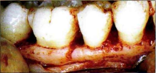 sation de l'American Academy of Periodontology). Figure 1.33 Creation chirurgicale d'une architecture