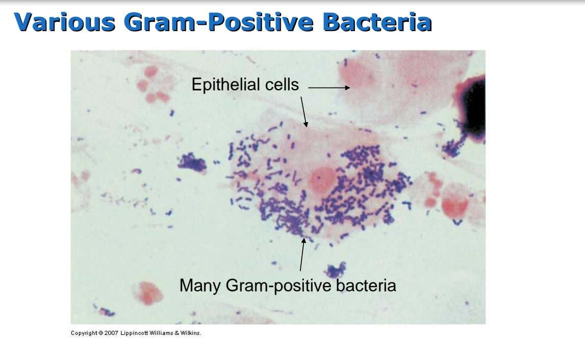 Various Gram-Positive Bacteria Epithelial cells Many Gram-positive bacteria
