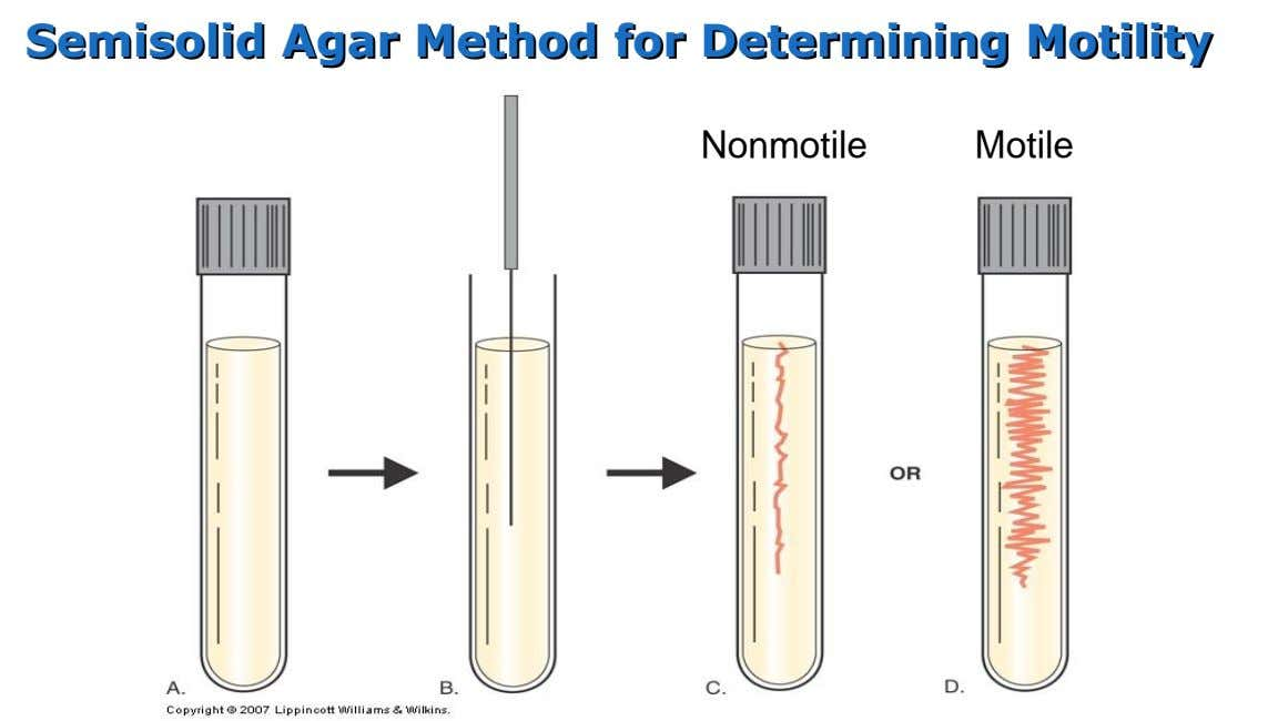 Semisolid Agar Method for Determining Motility Nonmotile Motile