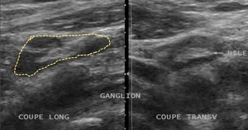  -rapport grand axe(L) / petit axe (S) > 2 : Ganglion normal en coupe transverse