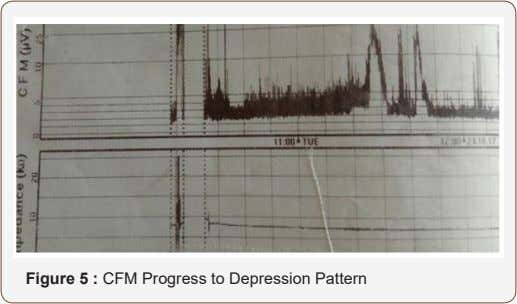 Figure 5 : CFM Progress to Depression Pattern