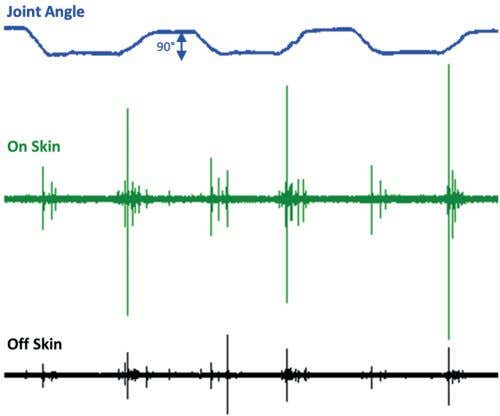 showed that the air microphones did not need to be di- Fig. 5. Joint sounds measured