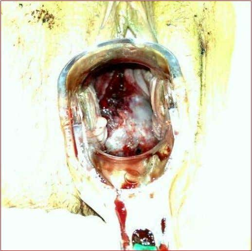 healing was satisfying for 30th day after the operation. Figure 1: Cervical rupture before repair. C