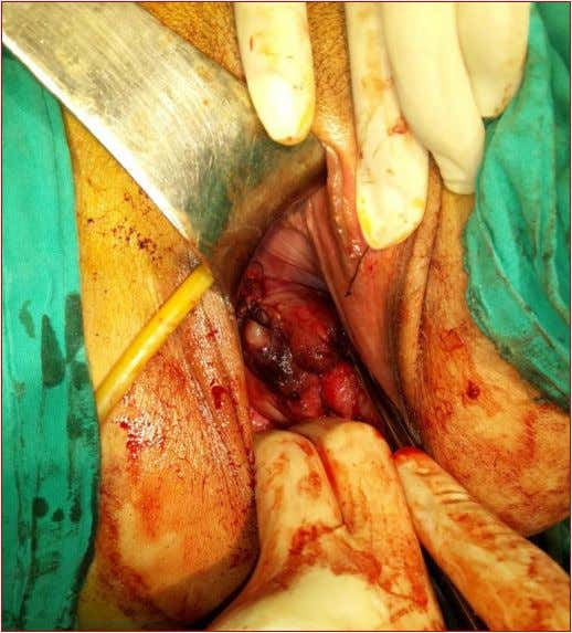 278 Figure 2: Cervical rupture after repair. DISCUSSION Anterior cervical rupture during elective second trimester