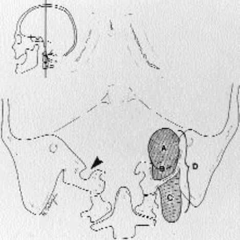 been regularly followed postoperatively in the Neurosurgery F IG . 1. Drawing showing tumor Types A