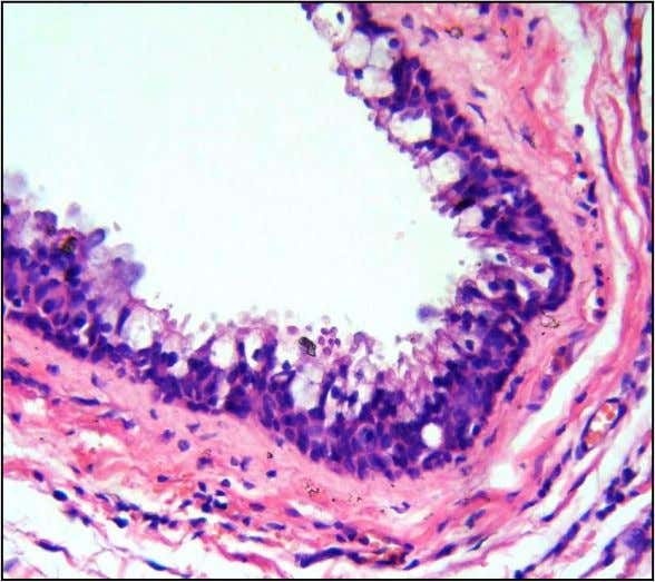 columnar and stratified squamous epithelium (H and E x 100). Figure 3 - Cyst lined by