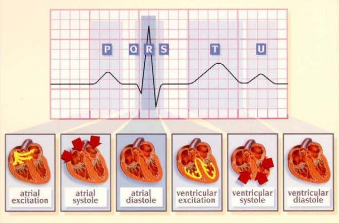 Figure 1: An Electrocardiogram Waveform There are many methodologies for hooking- up a subject for