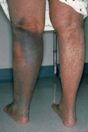 Case 31 A 71-year-old woman presented with swelling of the left calf. Deep venous thrombosis