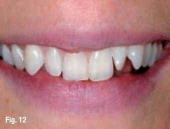 articolul expertului _ Cosmetic Dentistry Perfect Smile A lternatives ABC B enefits C omplications Dr. Jürgen
