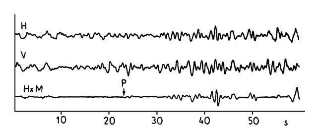 in concert with other procedures for SNR improvement. Fig. 4.31 Example of SNR improvement by polarization