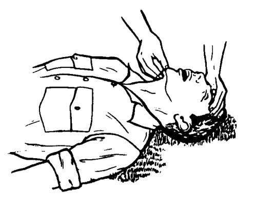 casualty's lower lip slightly to keep his mouth open. Figure 3-1. Opening the airway using the