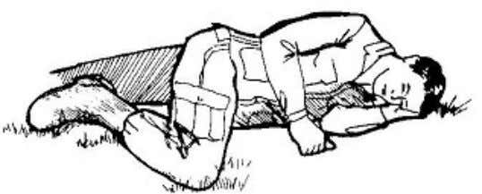arm under his chin. c. Flex the casualty's upper leg. Figure 3-11. Casualty in the recovery