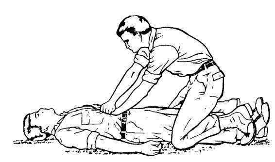 Figure 3-15. Administering an abdominal thrust to an unconscious person. c. Place your other hand