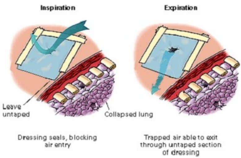 Figure 4-3. Flutter valve effects (inspiration and expiration). NOTE : If there are two wounds
