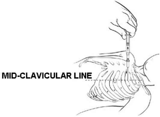 intercostal space (wound on casualty's left side). Figure 4-6. Locating the mid-clavicular line (wound on