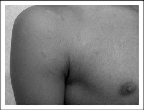 inverse pityriasis rosea involving the peri-axillary skin Pityriasis rosea can be mistaken for other exanthems, most